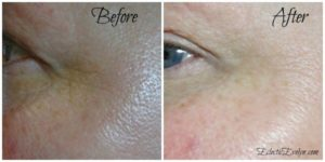 Review of Valentia Even Glow Serum - Before and After Photo EclecticEvelyn.com