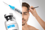 6 Lesser Known Facts About Botox Treatment